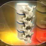 Грыжа межпозвонкового диска: причины, симптомы, лечение