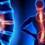Сколиоз - лечение руками остеопата
