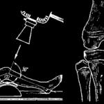 Краниальная остеопатия (стр. 121-140)