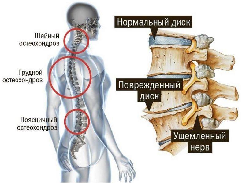 osteohondroz_036