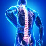 Остеохондроз: люмбоишиалгия