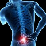 Остеохондроз - миотонические синдромы