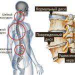 Остеохондроз, клиническая картина